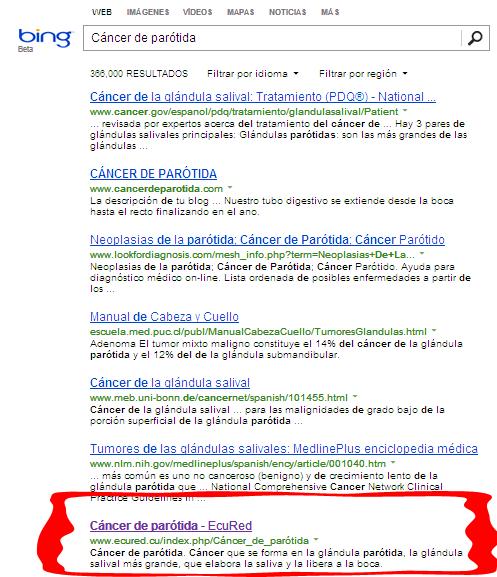 Resultado de la búsqueda de Cáncer de parotida según Bing