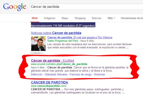 Resultado de la búsqueda de Cáncer de parotida según Google